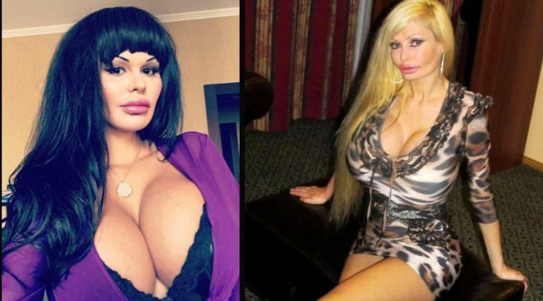 12 Women Who Overloaded Their Breasts With Silicon
