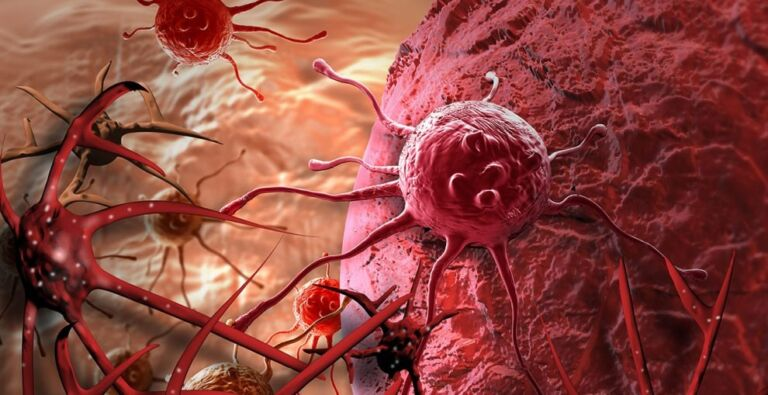 World Cancer Day: 10 Early Symptoms Of Cancer That You Should Not Ignore