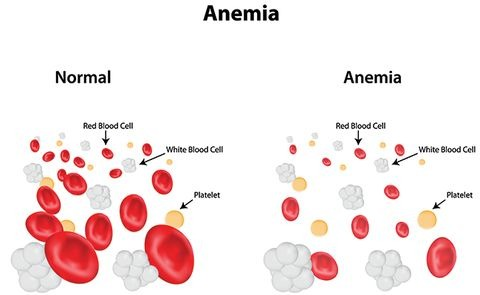 Anemia or lack of blood cancer symptom