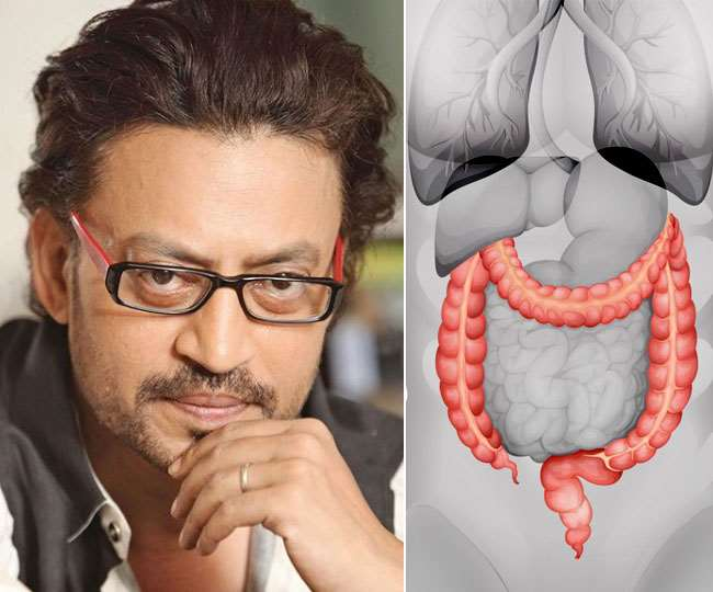 Cause, Treatment And Symptoms Of Colon Infection That Irfan Khan Was Struggling With