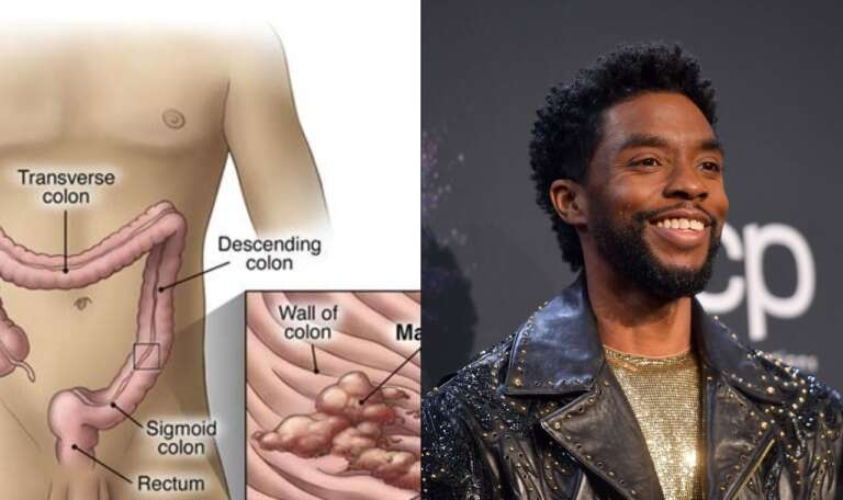 Causes, Methods, And Prevention Of Colon Cancer Which killed Chadwick Boseman (Black Panther)
