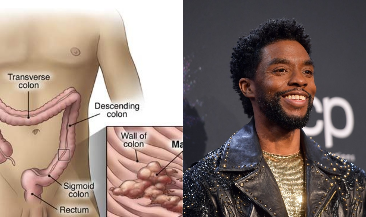 Causes Methods And Prevention Of Colon Cancer Which Killed Chadwick Boseman Black Panther