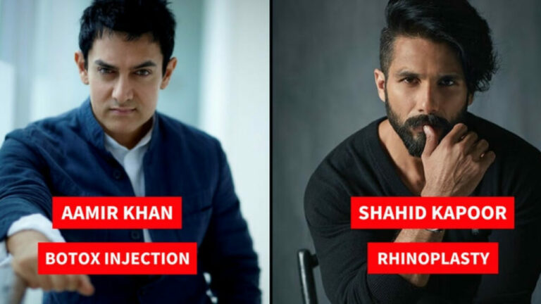 Bollywood Male Actors Who Have Undergone Plastic Surgeries