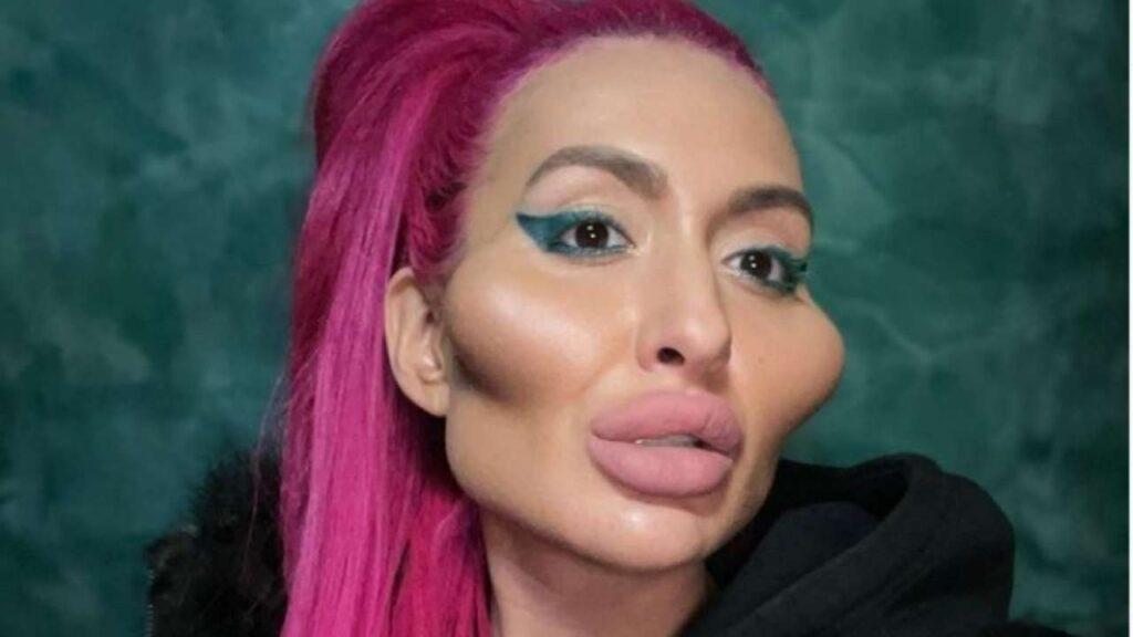 Anstasia Pokreshchuk cheek surgery